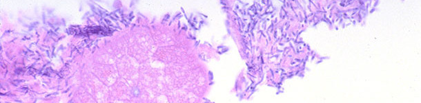 Small intestine of a piglet with diarrhea associated with Clostridium perfringens type A infection