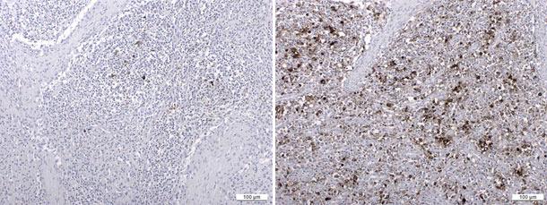 Antygen PCV2 wykryty w wyniku badania immunohistochemicznego