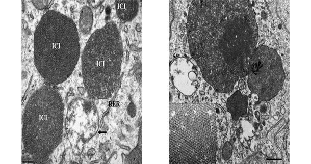 Fotografia z mikroskopu elektronowego przedstawiająca węzeł chłonny świni chorej na uogólniona postać cirkowirozy (PCV2-SD). Uwagę zwraca obecność wewnątrzplazmatycznych ciałek wtrętowych (ICI)