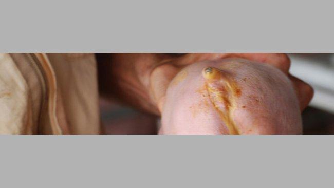 Biegunka wywołana przez E. coli (dzięki uprzejmości dr Hectora Pattullo)