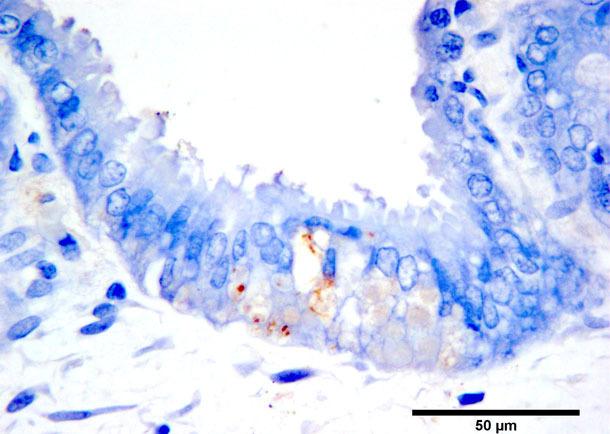 Immunohistochemiczne barwienie antygenu PCV2b w zmianach martwicowych trofoblastu.