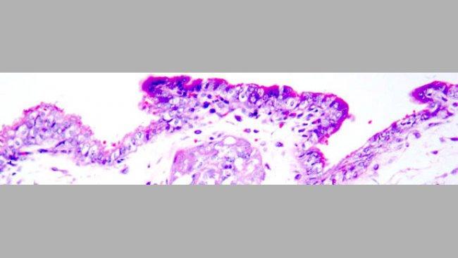 Martwica skrzepowa trofoblastu. Barwienie hematoksyliną i eozyną.