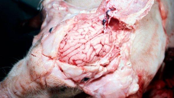 """Rycina 5. """"Mokra"""" powierzchnia mózgu."""