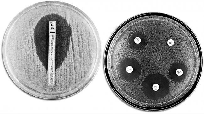 Klasyczne techniki oceny oporności na antybiotyki. Zdjęcie pokazuje E-TEST po lewej stronie, w celu pomiaru minimalnego stężenie antybiotyku zapobiegającego rozwojowi bakterii. Prawa strona pokazuje test wrażliwości na środki przeciwdrobnoustrojowe z różnymi strefami zahamowania wzrostu bakterii wobec różnych antybiotyków.