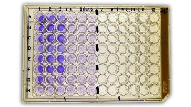 Rys. 2b: Test neutralizacji wirusa surowicy (SVN) do wykrywania przeciwciał przeciwko wirusowi biegunki bydła (BVDV)