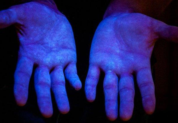 Zdjęcie 6.Proszek fluorescencyjny pod światłem UV uwidaczniający ilość zanieczyszczeń na ludzkich dłoniach. Żródło: www.glogerm.com