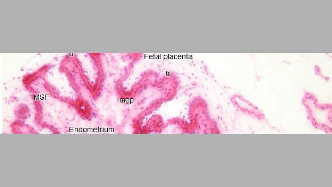 Histopathology in the endometrium and placenta