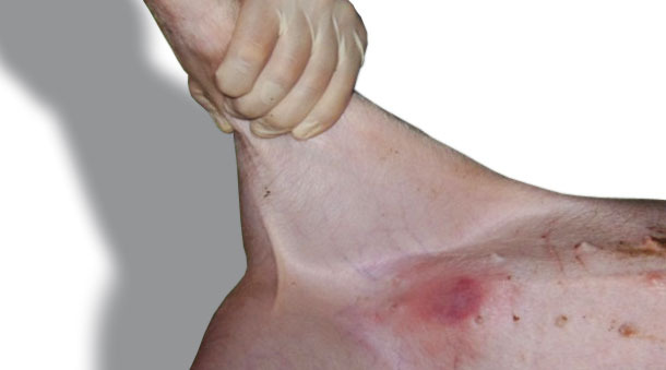 Typical reaction (erythema) seen 24 h after the inoculation in the skin of the abdomen