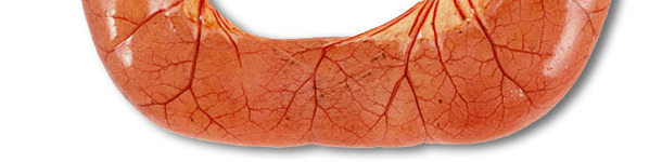 W badaniu sekcyjnym przypadków biegunki ETEC przeważnie stwierdza się rozszerzone, przekrwione pętle jelita cienkiego wypełnione wodnistą żółtą treścią