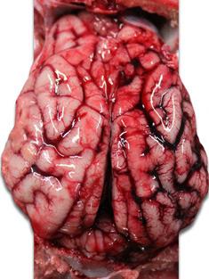 Przekrwienie mózgu prosięcia