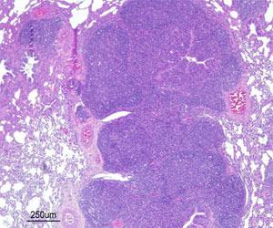 Odoskrzelowe i śródmiąższowe zapalenie płuc z rozrostem tkanki limfoidalnej związanej z oskrzelami (BALT) wywołane w wyniku doświadczalnego zakażenia Mhyo.